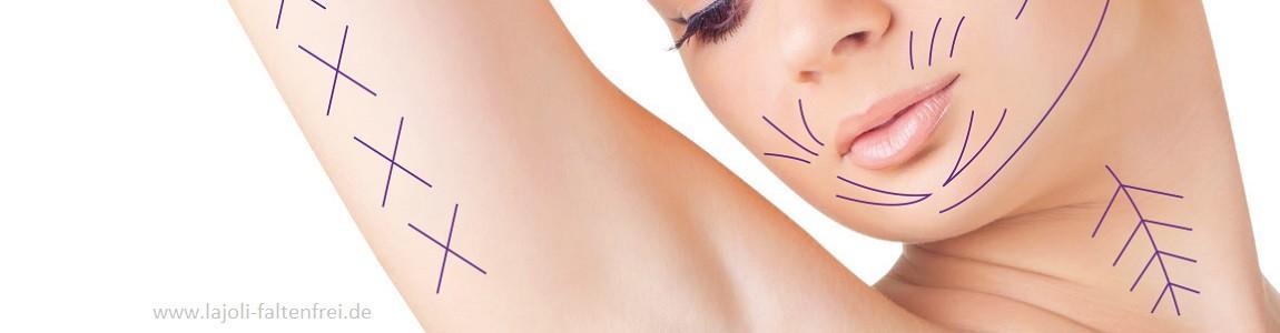 LAJOLI Fadenlifting zur Faltenbehandlung im Gesicht ( Wangen, Kinn , Oberlippenbereich, Gesichtskontur )