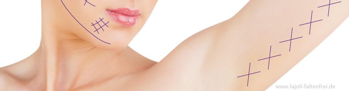 LAJOLI Fadenlifting zur Faltenbehandlung im Gesicht ( Wangen, Kinn , Oberlippenbereich, Oberarm)