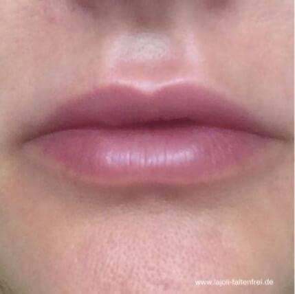 Lippen aufspritzen mit Hyaluronsäure in der LAJOLI Praxis für Fadenlifting und Faltenunterspritzung