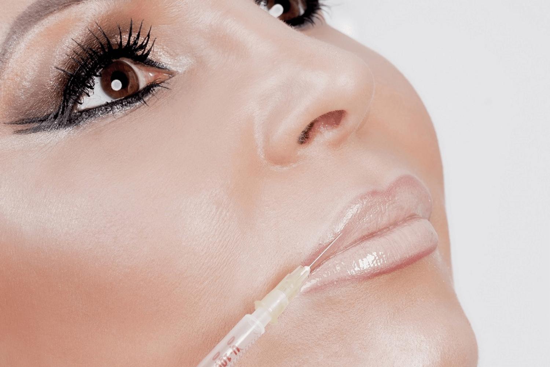 Lippen aufspritzen mit Hyaluronsäure - LAJOLI Praxis für Ästhetik in Hamburg - Leja
