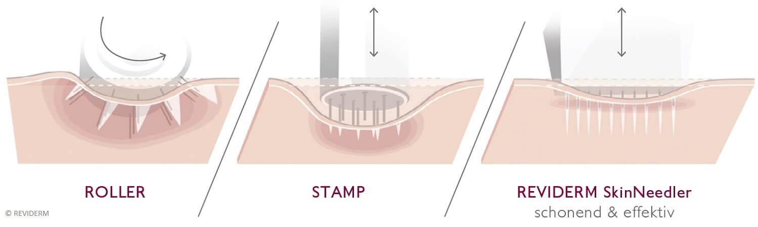 Micro-Needling von Reviderm - Illustration Roller, Stamp, Needler - LAJOLI Praxis für Ästhetik Leja