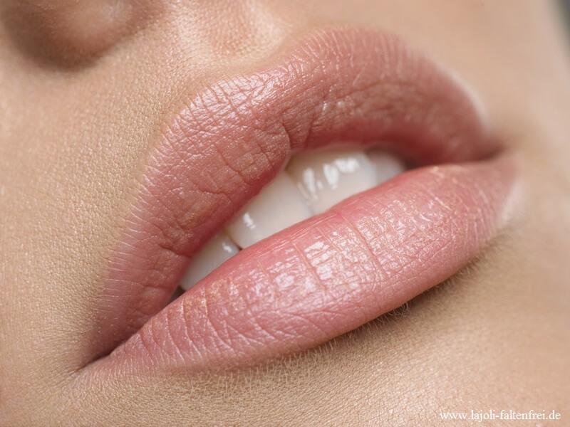 Lippen aufspritzen ganz natürlich - LAJOLI Faltenunterspritzung