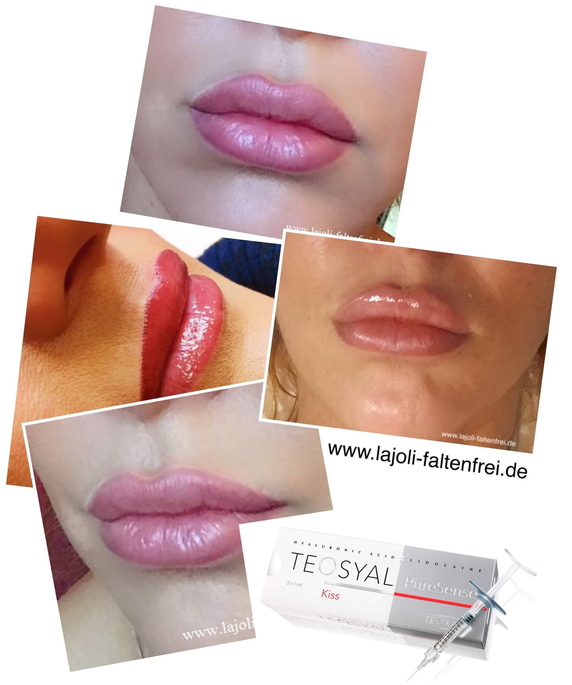 Lippen aufspritzen mit Hyaluronsäure in der ästhetischen Praxis Lajoli - Lips MapeUp