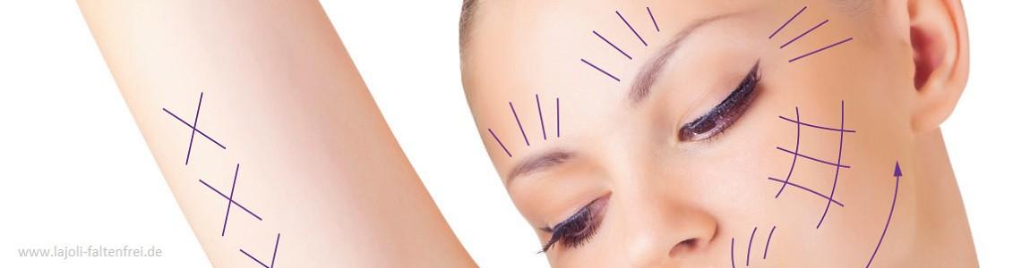 LAJOLI Fadenlifting zur Faltenbehandlung im Gesicht ( Strin, Augenpartie, Wangen, Kinn , Gesichtskontur )