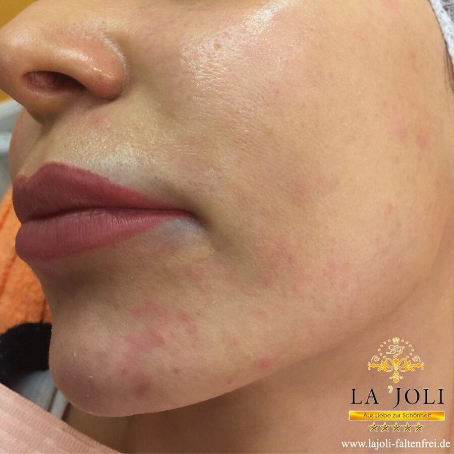 Bilder Fadenlifting im Wangenbereich - LAJOLI Praxis für ästhetische Schönheitsbehandlung - Kosmetik