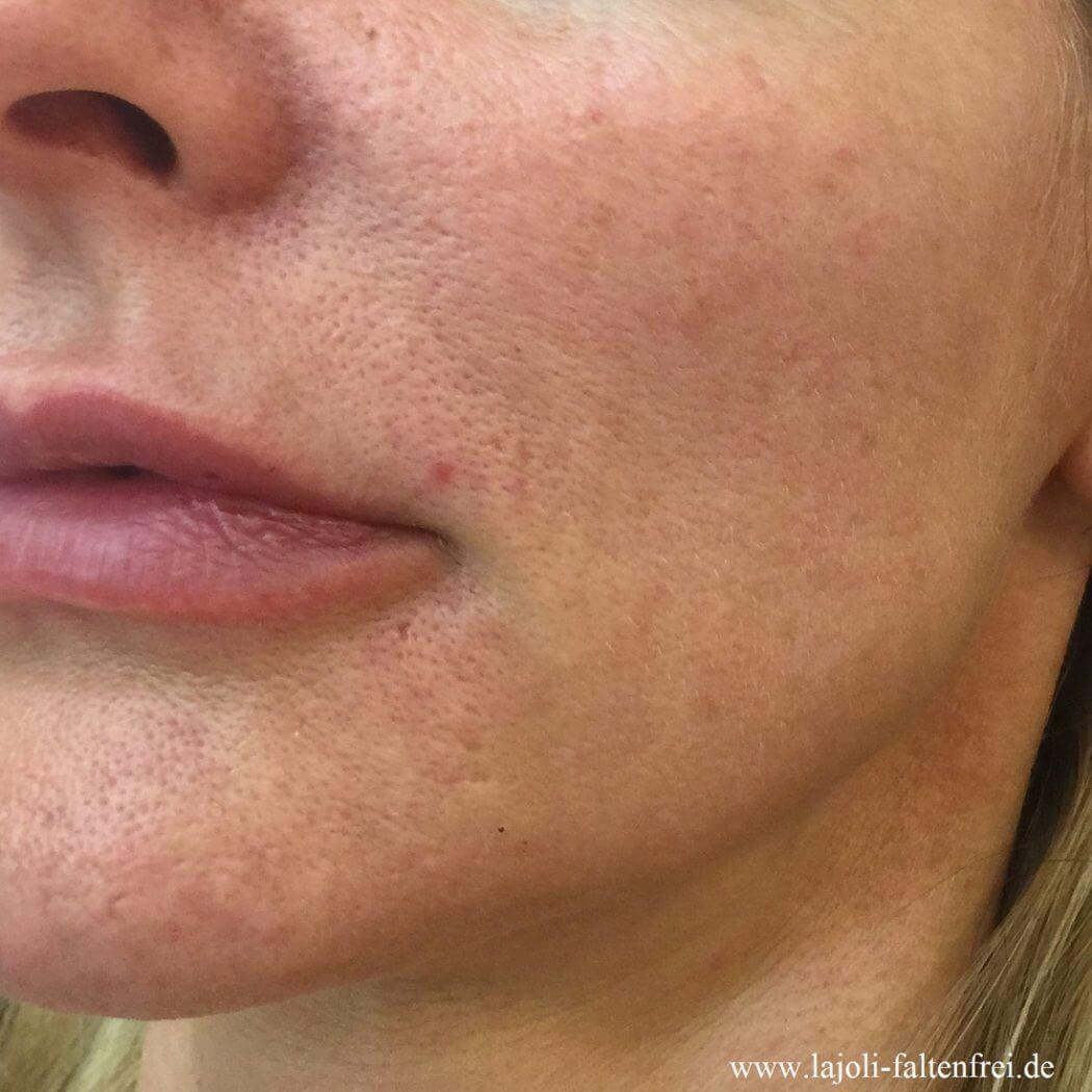 LAJOLI Fadenlifting im Wangenbereich - aus der Praxis in Hamburg für ästhetische Schönheitsbehandlung und Faltenunterspritzung - Kosmetik