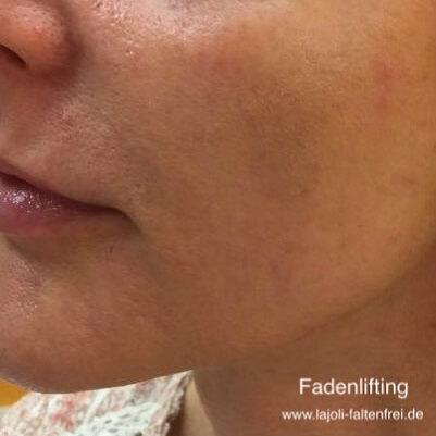 Fadenlifting im Bereich der Wangenkontur aus der LAJOLI Praxis für Faltenunterspritzung & Fadenlifting
