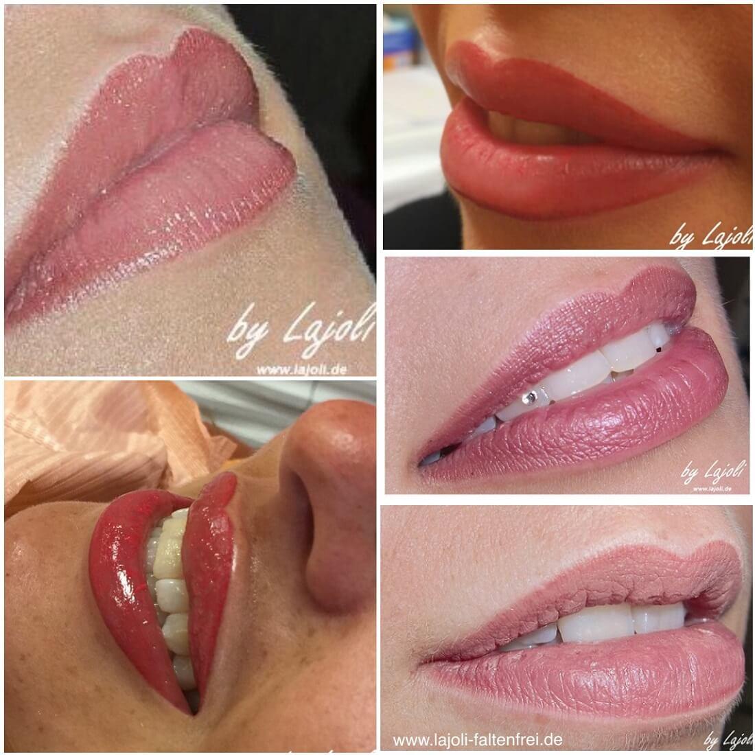Lippen Permanent Make Up und Lippen aufspritzen mit Hyaluronsäure in der ästhetischen Praxis LAJOLI