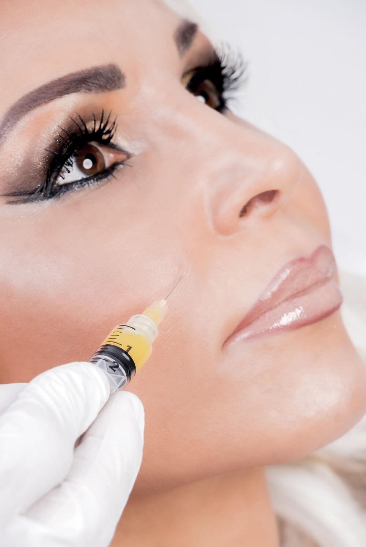 Vampir-Lifting in Kombination mit MicroNeedlung für ein besseres Hautbild - LAJOLI Praxis für Ästhetik