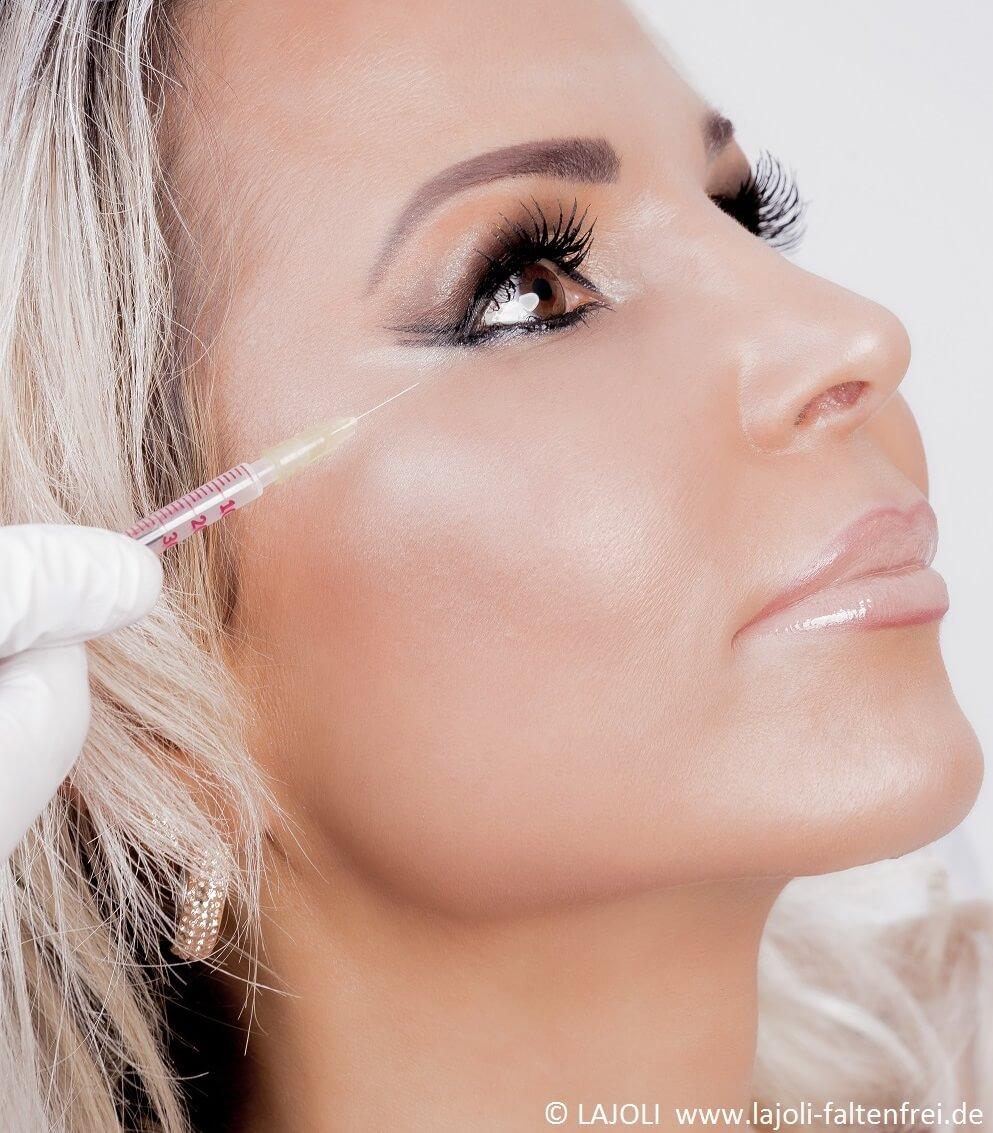 Botox und Faltenunterspritzung mit Hyaluronsäure - LAJOLI Praxis für Ästhetik - Hamburg - Leja