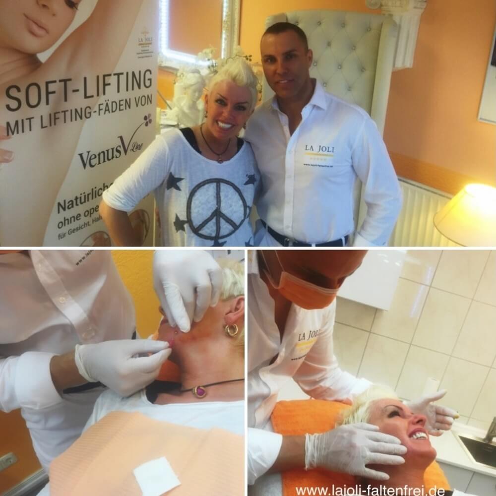 Claudia Gülzow zum Fadenlifting und Faltenunterspritzung mit Hyaluronsäure bei LAJOLI