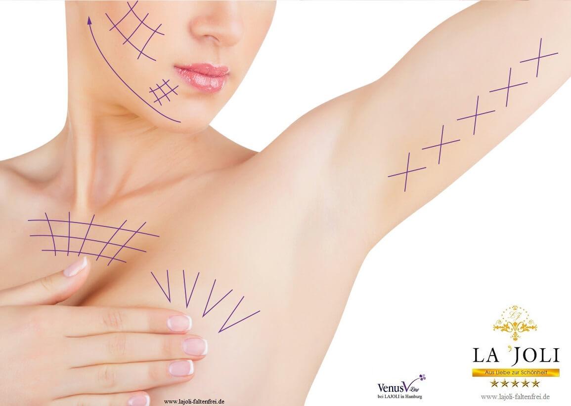 LAJOLI Fadenlifting und Faltenunterspritzung Bilder - Hamburg - ästhetische Schönheitsbehandlung - Kosmetik