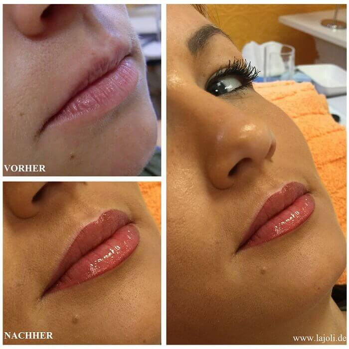 Lippen Permanent Make Up Bilder - Manuela Leja LAJOLI - Lips - Lippen aufspritzen mit Hyaluronsäure 01