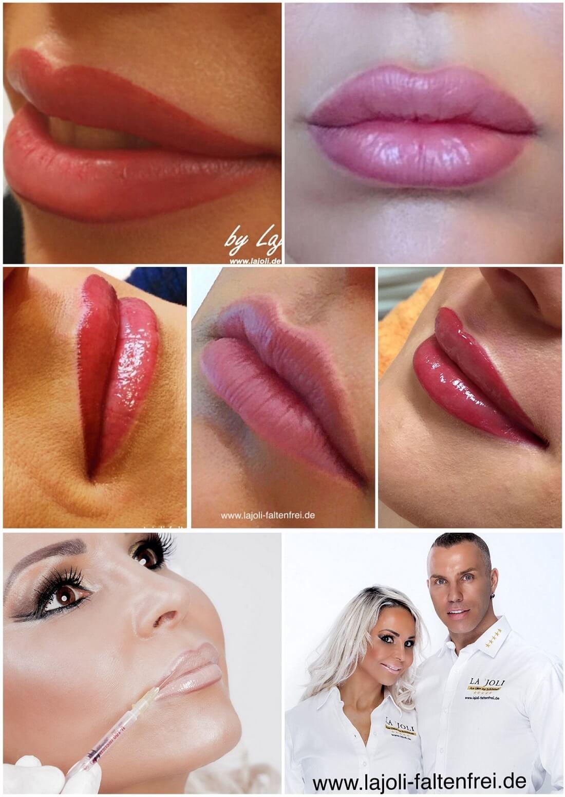Lippen Modellierung mit Hyaluronsäure - LAJOLI Praxis für Ästhetik in Hamburg – Leja – Lippen aufspritzen, Botox, Microneedling