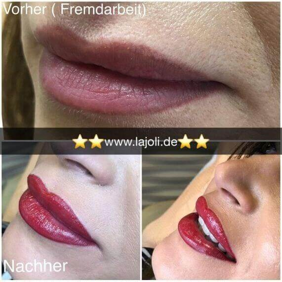 Lippen Permanent Make Up Bilder - Manuela Leja LAJOLI - Beauty Lips - Lippen aufspritzen mit Hyaluronsäure 03