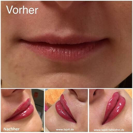 Lippen Permanent Make Up Bilder - Manuela Leja LAJOLI - Beauty Lips - Lippen aufspritzen mit Hyaluronsäure 05